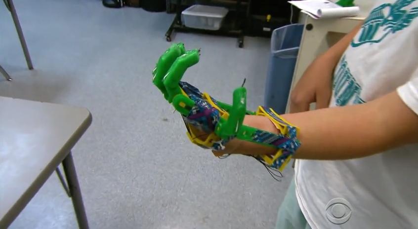protese-mao